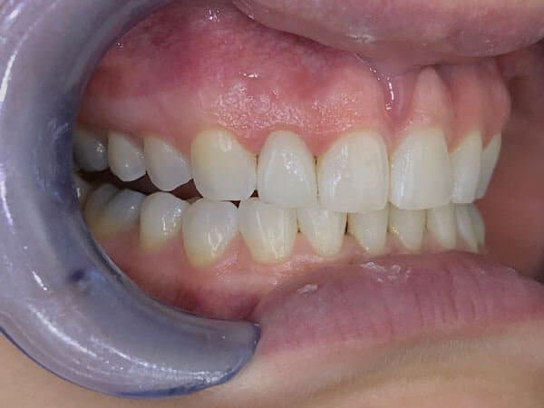 Dental Tooth Crown After