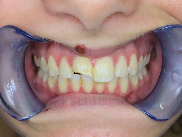 Dental Tooth Crown Before