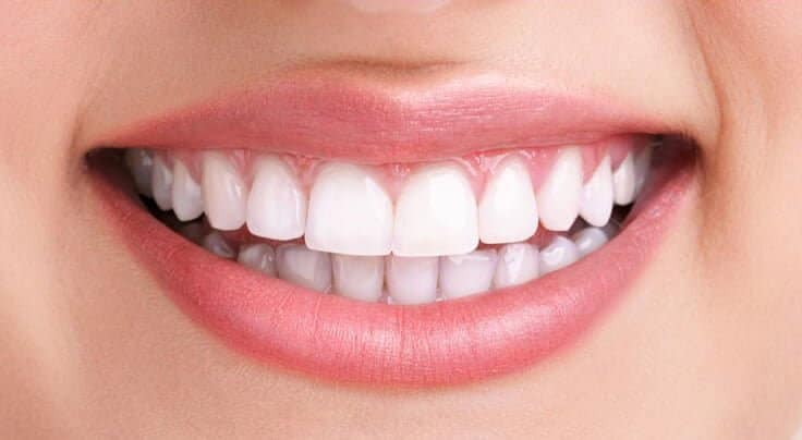 Teeth Whitening Newcastle - After Treatment